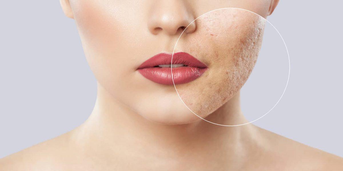 Hautunreinheiten Lösung